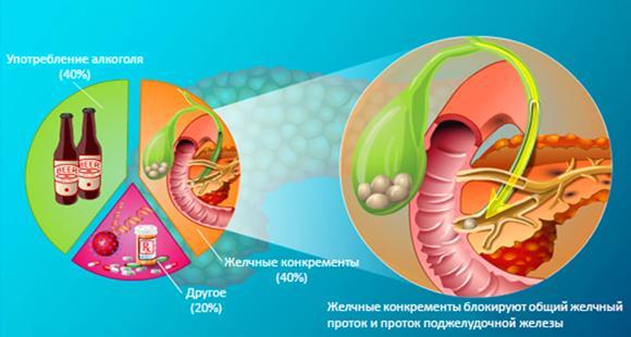 Желчные конкременты блокируют общий желчный проток