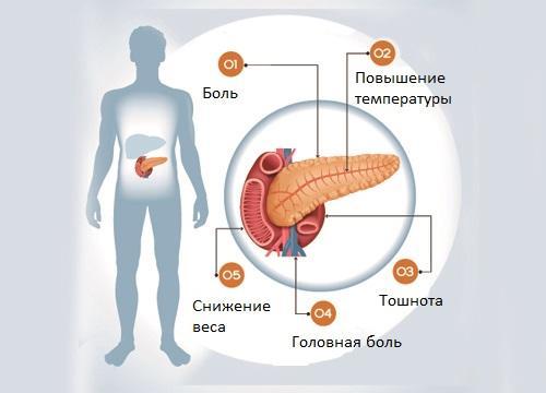 Симптоматика панкреатита